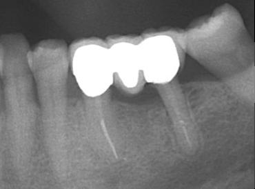 Regeneración Osea - Cirugia Oral Donostia Achutegui Dentista Amara