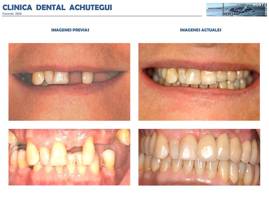 3556 - clinica dental achútegui donostia san sebastian