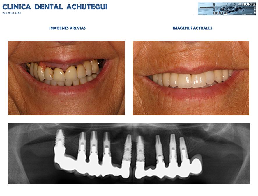 5182 implantes dentales clinica dental achutegui amara dentista donostia san sebastian