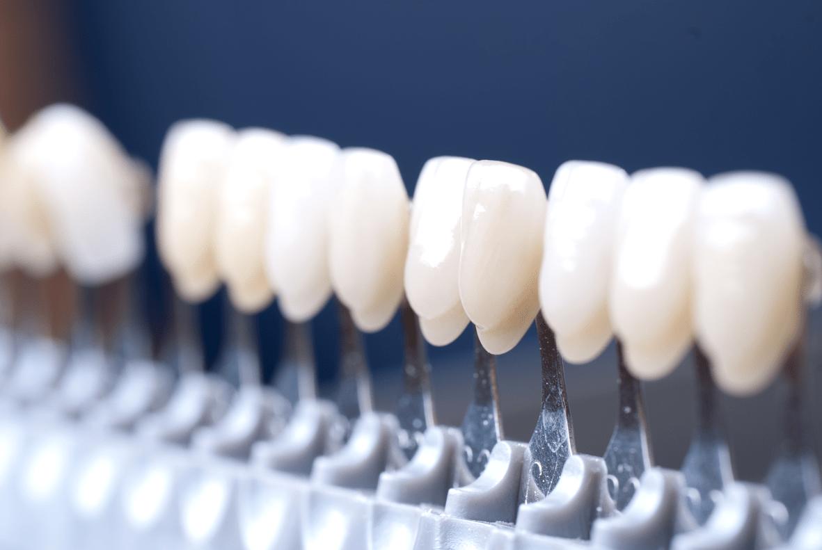 carillas-dentales-donostia