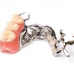 protesis-dentista-donostia