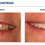 Achútegui Dental casos reales resultados paciente 9
