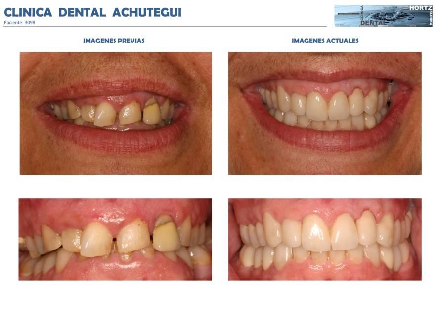002-3098 Periodoncia Clinica Dental Achutegui Dentista Amara Donostia San Sebastian