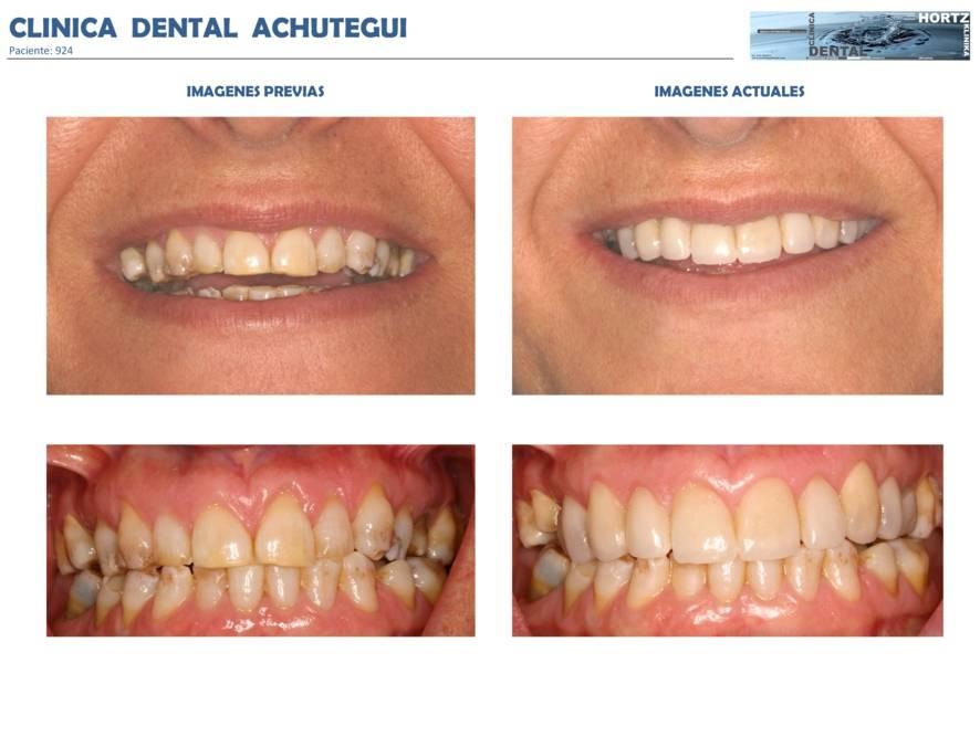 012-924 Periodoncia Clinica Dental Achutegui Dentista Amara Donostia San Sebastian