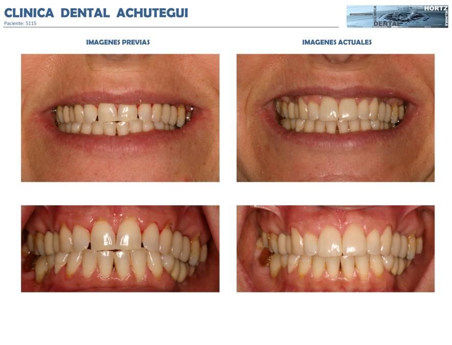 023-5115 Carillas o Facetas de porcelana Clinica Dental Achutegui Dentista Amara Donostia San Sebastian