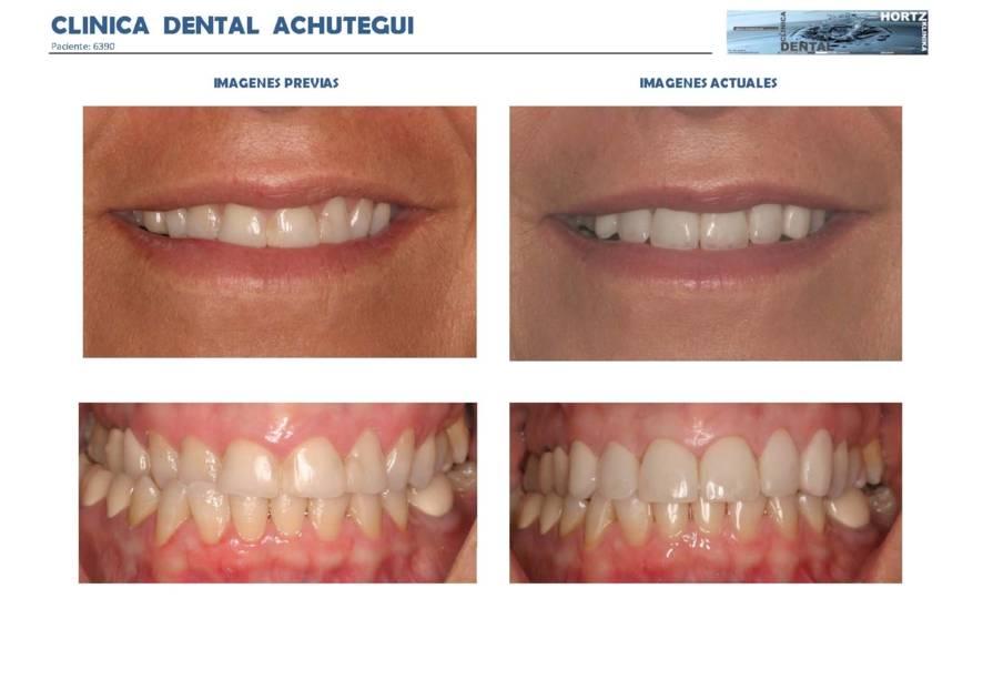 038-6390 Carillas o Facetas de porcelana Clinica Dental Achutegui Dentista Amara Donostia San Sebastian