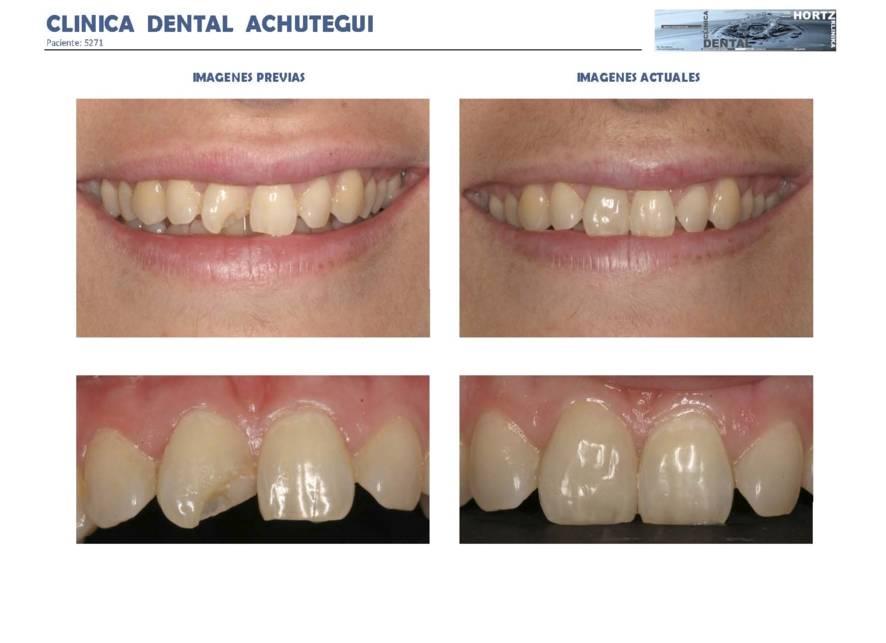 039-5271 Carillas o Facetas de porcelana Clinica Dental Achutegui Dentista Amara Donostia San Sebastian
