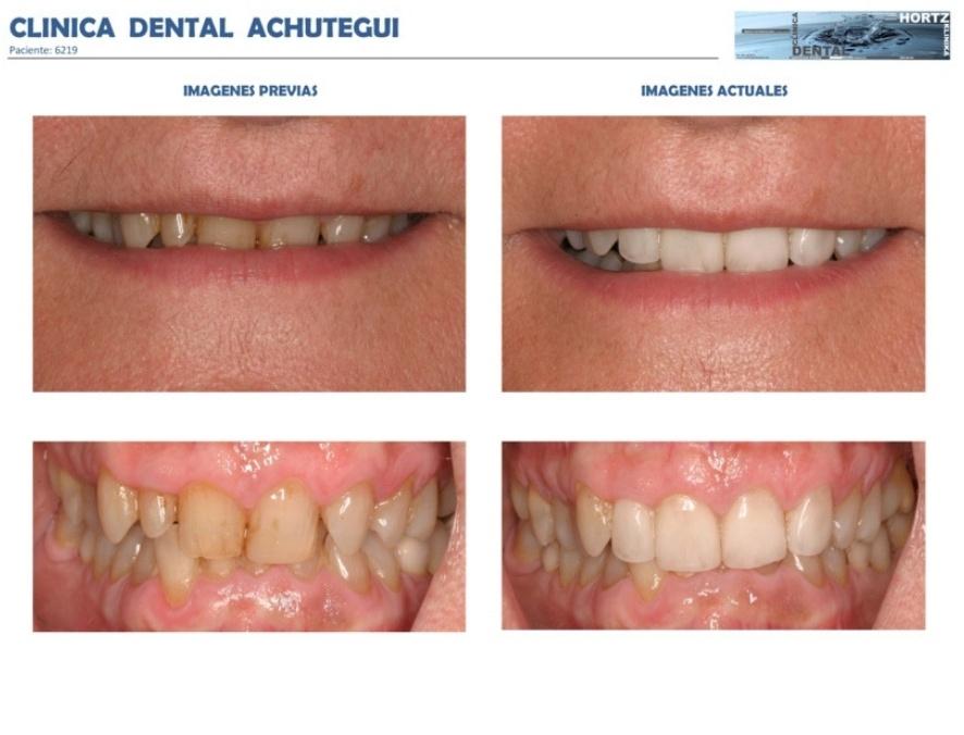 042-6219 Carillas o Facetas de porcelana Clinica Dental Achutegui Dentista Amara Donostia San Sebastian