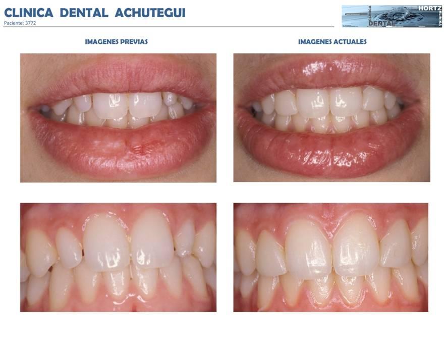 049-3772 Carillas o Facetas de porcelana Clinica Dental Achutegui Dentista Amara Donostia San Sebastian