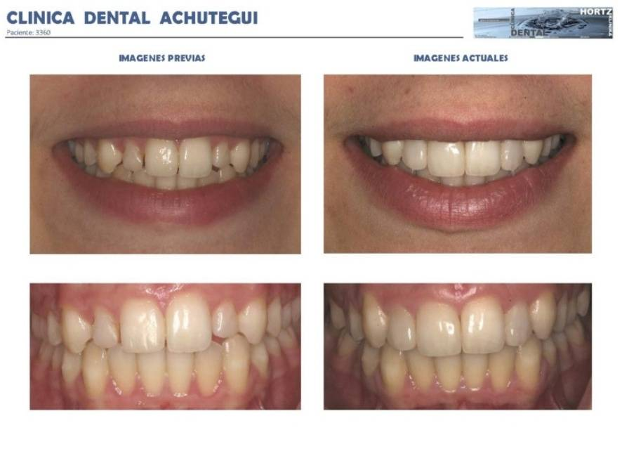 062-3360 Carillas o Facetas de porcelana Clinica Dental Achutegui Dentista Amara Donostia San Sebastian