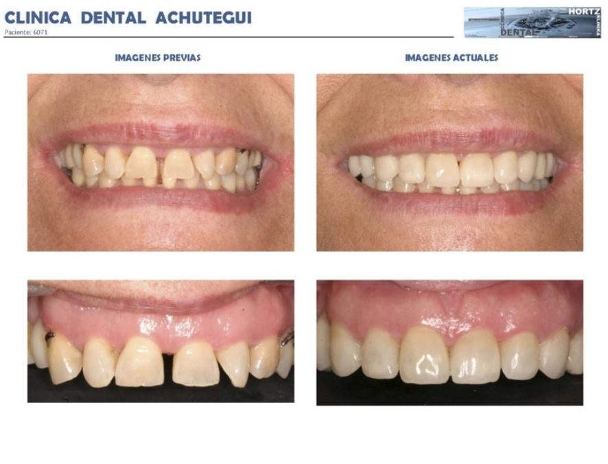 065-6071 Carillas o Facetas de porcelana Clinica Dental Achutegui Dentista Amara Donostia San Sebastian