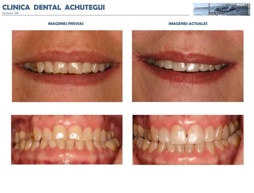 068-549.1 Carillas o Facetas de porcelana Clinica Dental Achutegui Dentista Amara Donostia San Sebastian