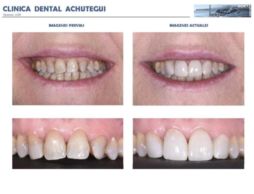 092-5199 Carillas o Facetas de porcelana Clinica Dental Achutegui Dentista Amara Donostia San Sebastian