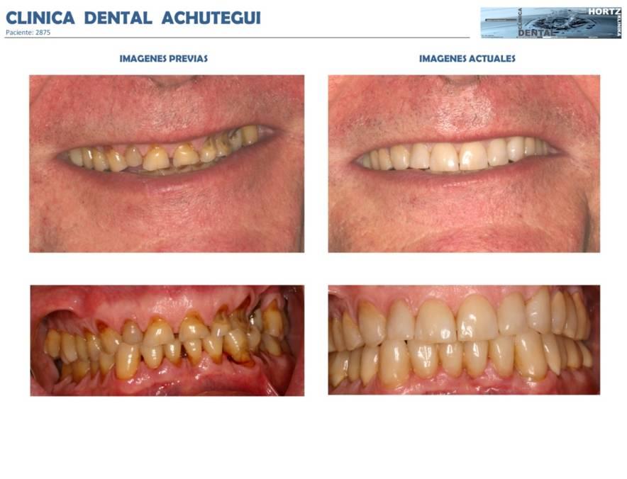 2875 Carillas o Facetas de porcelana Clinica Dental Achutegui Dentista Amara Donostia San Sebastian