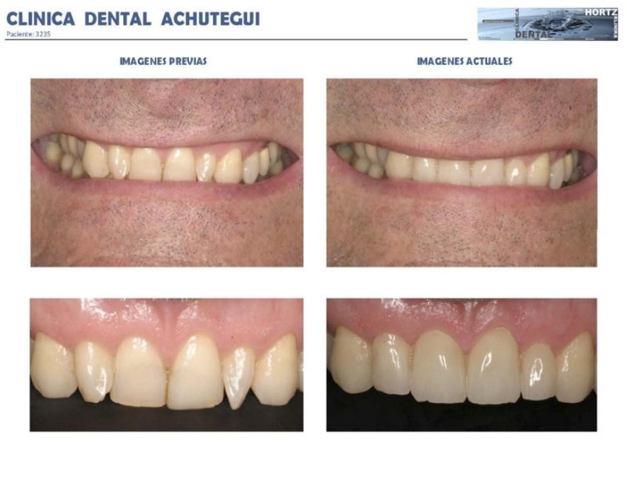 3235 Carillas o Facetas de porcelana Clinica Dental Achutegui Dentista Amara Donostia San Sebastian