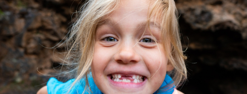 salud bucodental de tus hijos Qué deberían saber los padres acerca de la salud bucodental de sus hijos Clinica Dental Achutegui Tu dentista en Amara Donostia