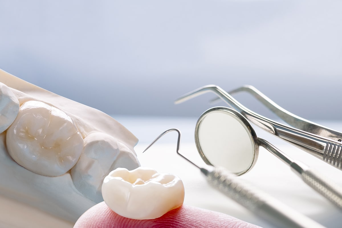 protesis dentales san sebastian