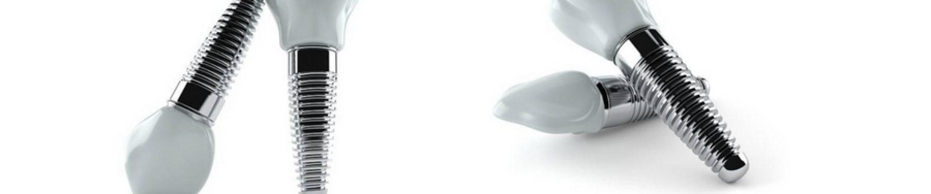 Implantes Dentales Dudas Mas Comunes Achutegui Dental Dentista Donostia San Sebastian