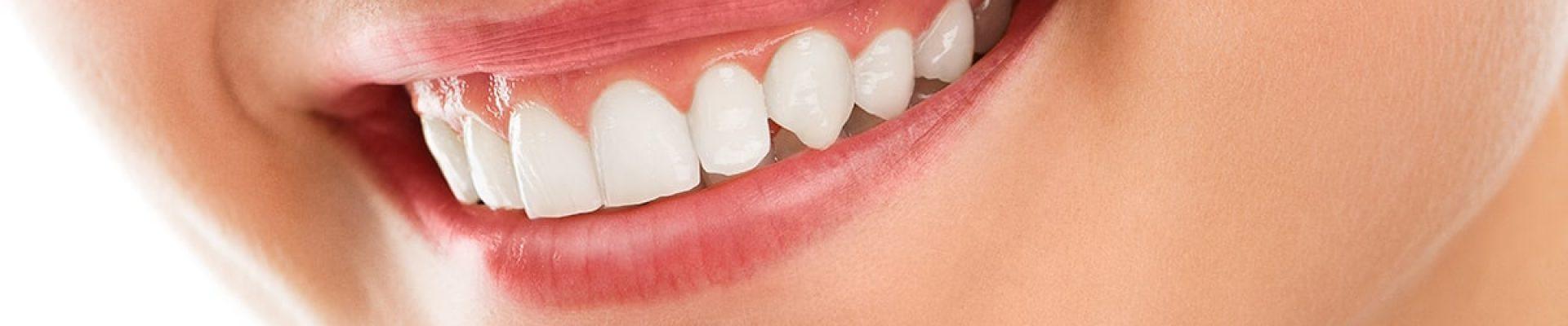 blanqueamiento dental san sebastian
